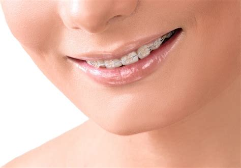 invisible braces   work   cost