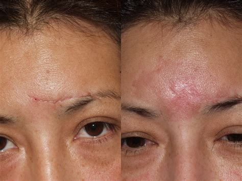 c section scar removal before and after covering scars on forehead c section scar removal before