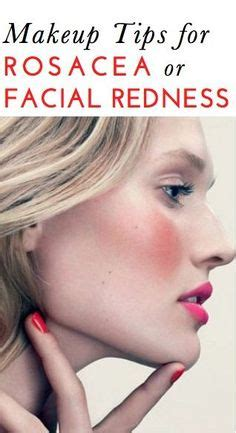 best makeup for rosacea sufferers 1000 images about rosacea facts on pinterest rosacea