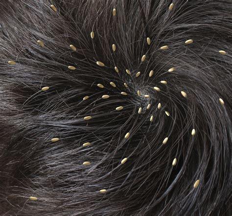 Shoo Anti Kutu So Anti Kutu Anti Lice Sho Berkualitas pediatricians say students with lice can stay in