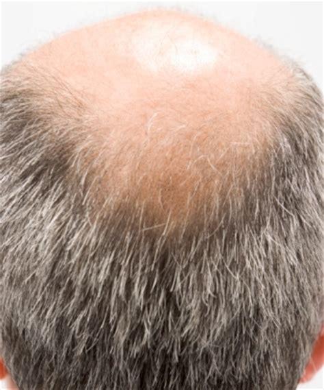 Hair Disease Types types of hair diseases