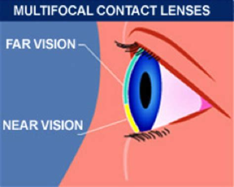 bifocal contacts long island, bifocal contacts in westbury