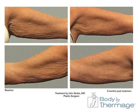 Skin On Arms Before And After Detox by Before And After By Thermage Arms Thermage