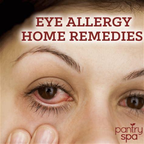 eye allergies eye allergies remedies for itchy watery