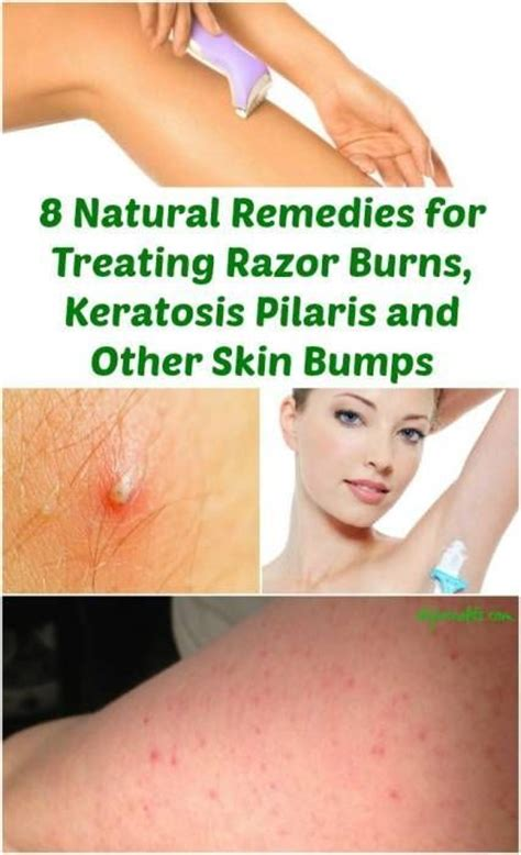 17 best images about home remedies on sore