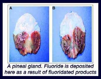 Detox Flouride Feel by How To Decalcify Your Pineal Gland And Why You Should