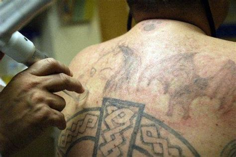 tattoo removal bay area hayward hospital removes prison tattoos for free