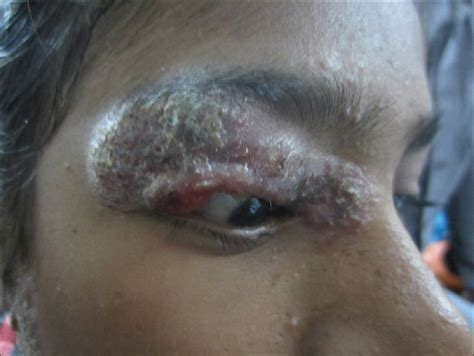 Multifocal lupus vulgaris with involvement of palpebral ... Lupus Vulgaris Face