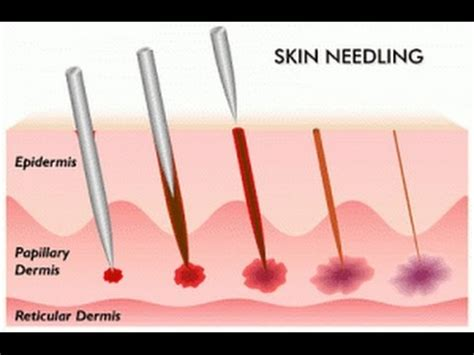 micro needling tattoo removal can micro needling get rid of acne scars