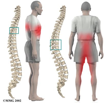 thoracic disc herniation | eorthopod.com