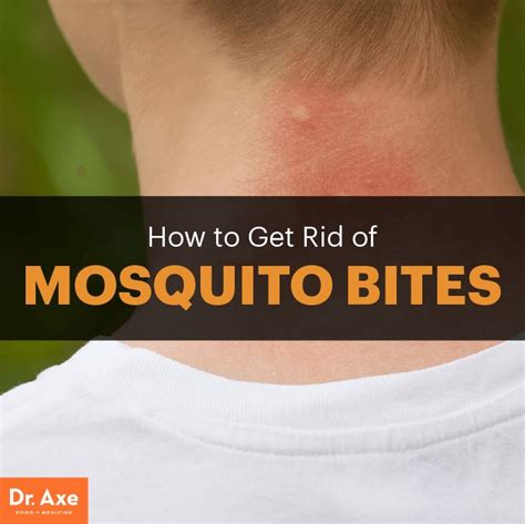 how to get rid of mosquitoes in your backyard 1000 ideas about mosquito bite itch on pinterest