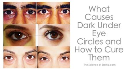 4 Things That Cause Your Eye Circles And Puffiness by Remedies For Eye Circles The Science Of