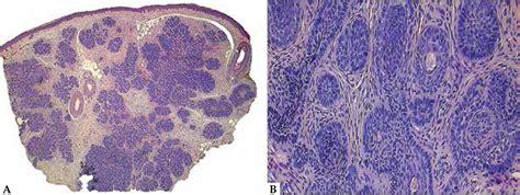 Basaloid Follicular Hamartoma Pathology Outlines by Basaloid Follicular Hamartoma Pathology Outlines Bamboodownunder