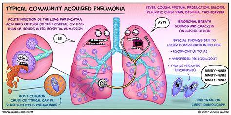 Pdf Cortana What Are The Symptoms Of Pneumonia by Typical Community Acquired Pneumonia Medcomic