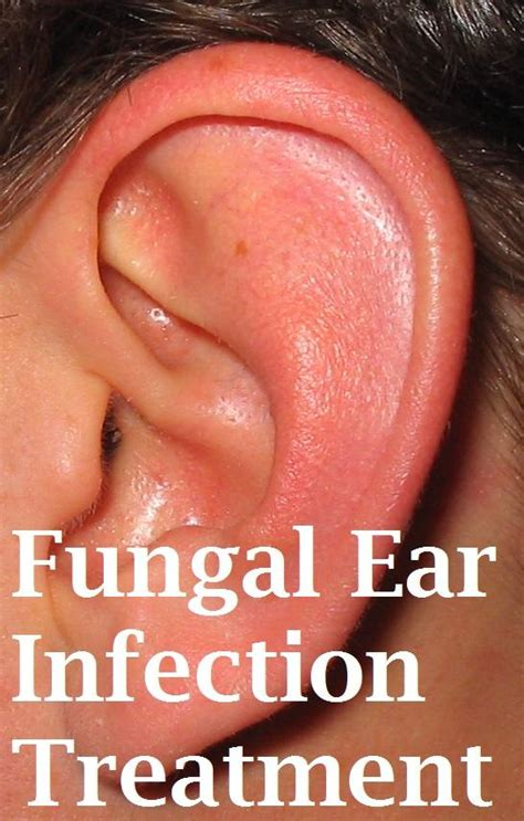 ear infection remedy fungal ear infection treatment infobarrel