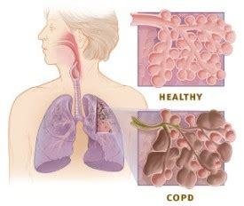 Detox Lungs Copd by Lung Detox Cleanse Your Lungs After Quitting