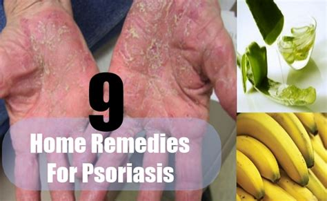 9 effective home remedies for psoriasis how to treat