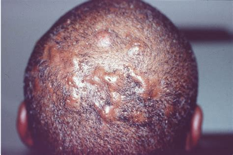 folliculitis treatment folliculitis treatment home and ayurvedic
