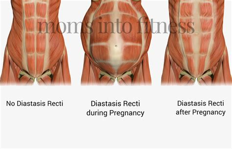transverse abdominal exercises after c section transverse abdominal exercises after c section pinning