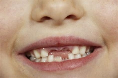 hundreds  sussex children  rotten teeth pearl