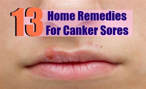 Home Remedy For Canker Sore by 9 Canker Sores Home Remedies Treatments And Cures