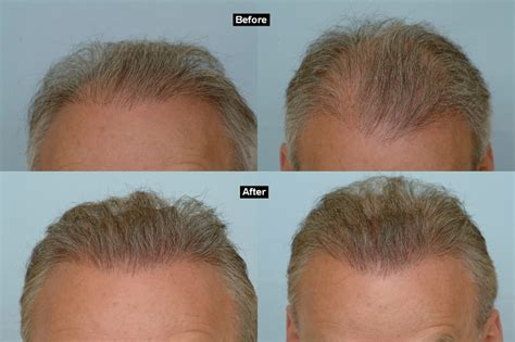 hair transplants 1000 graft coverage transplants 1000 graft coverage 1000 hair grafts cost