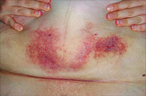 Following C Section by Violaceous And Ulcerated Plaque Following A Cesarean