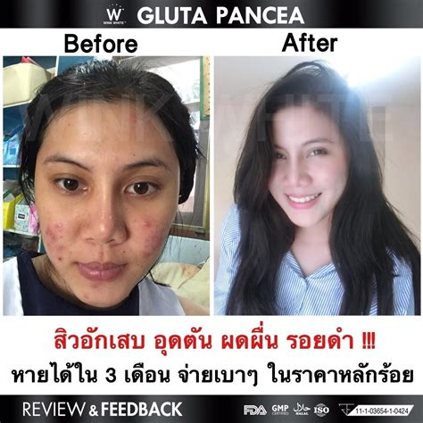 Gluta Panacea 3 gluta pancea b v thailand best selling products shopping worldwide shipping