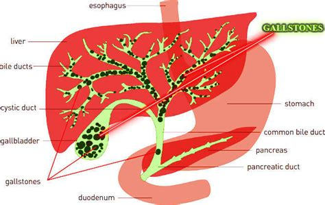 Liver Detox Safe During Pregnancy by Successful And Safe Liver Cleanse In 24 Hours Get Rid Of