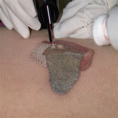 tattoo removal system removal how to remove tattoos