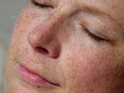 pigmentation treatments cardiff newport bristol