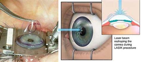 eye surgery laser eye surgery are you putting your at risk endmyopia org