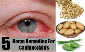 home remedies for conjunctivitis home remedies viral eye infection