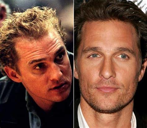 hair plug versus transplant celebrity celebrity hair transplants florida hair restoration