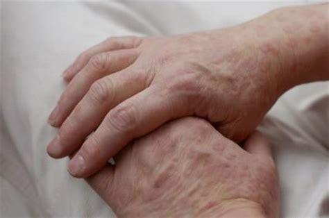 skin rashes and hiv | lovetoknow