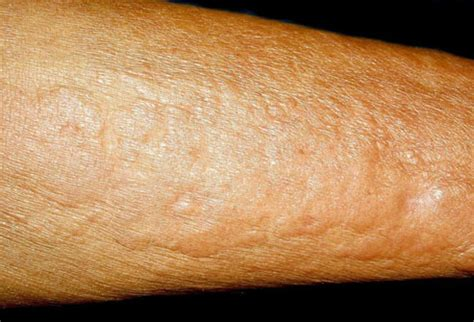 U And Your Skin by Pictures Of What Your Skin Says About Your Health
