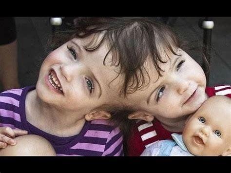 imagenes de niños que nacen pegados siamesas comparten cerebro impresionante