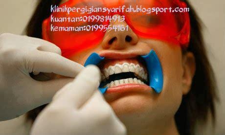 Buat Pemutihan Gigi klinik pergigian syarifah pemutihan gigi murah