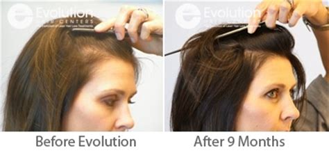 treating hair fall women over 50 womens hair loss female hair loss treatment