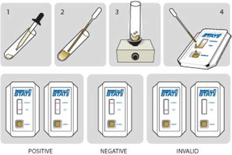 Different Types Of Stool Tests by Guinea4 Work Plate Reading For Stool Cultures