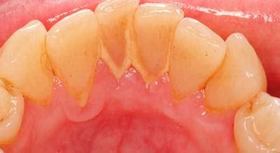 Biaya Membersihkan Karang Pada Gigi Cara Uh Menghilangkan Karang Gigi It Works Masbroo
