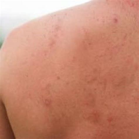 pimples on back 17 best ideas about pimples on back on pimples on clear and
