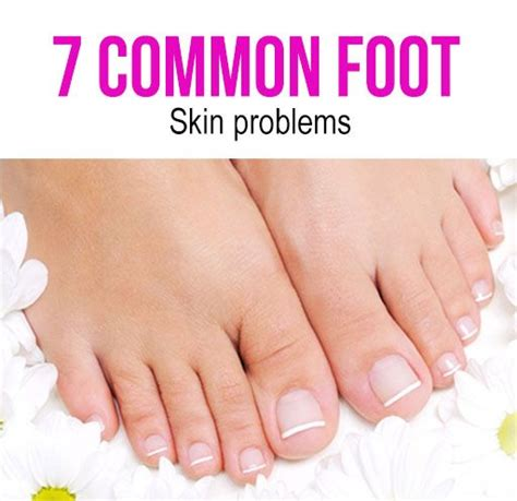 Common Foot Problems by 7 Skin Problems Symptoms Causes And Its Treatment Skin