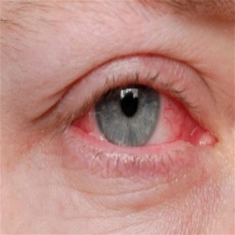 eye infection 5 effective treatments to cure eye infection with herbs