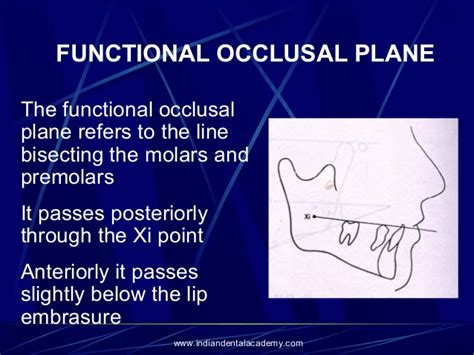 How To Draw Plane occlusal plane orthodontic seminars