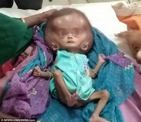 born private meaning indian baby born with head twice the normal size daily