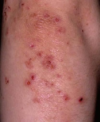 progesterone on scalp dermatitis herpetiformis pictures symptoms causes and