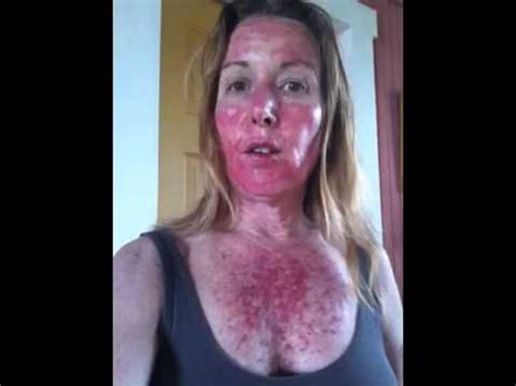what does light therapy do for your skin levulan blue light