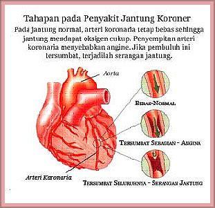 Obat Jantung komplikasi hiper kolesterol episode 2 herbal kolesterol