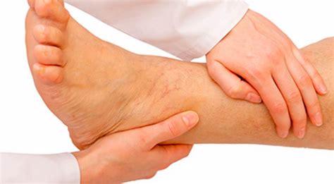 Qnc Jelly Gamat Gagal Ginjal mengatasi kaki bengkak karena gagal ginjal jelly gamat qnc